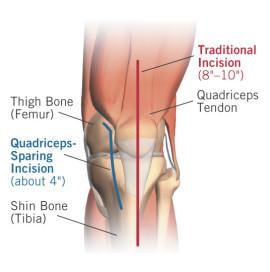 Quad Sparing Total Knee Replacement Northwest Knee